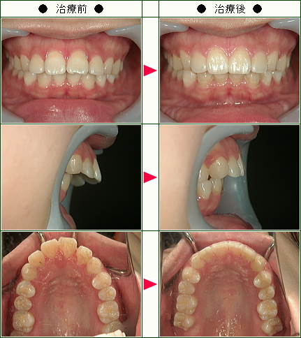 出っ歯矯正症例(山崎様 22歳 女性)