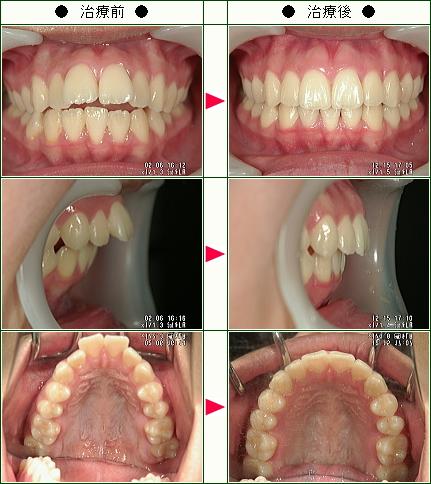 出っ歯矯正症例(柳下様 14歳 女性)