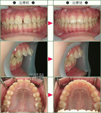 出っ歯矯正症例(Y・E様 13歳 女性)