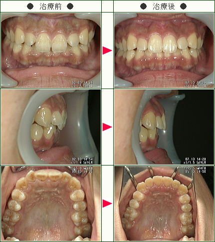 歯のデコボコ矯正症例(Y・I様 18歳 女性)