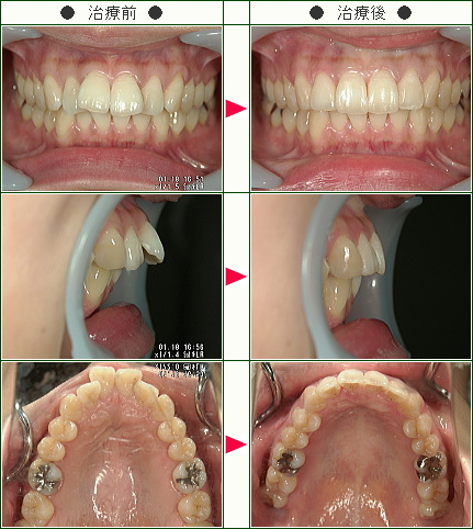 出っ歯矯正症例(Y・I様 29歳 女性)