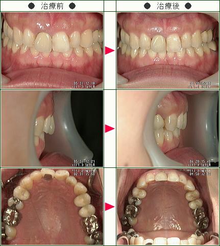 歯のデコボコ矯正症例(Y.I.様 34歳 女性)