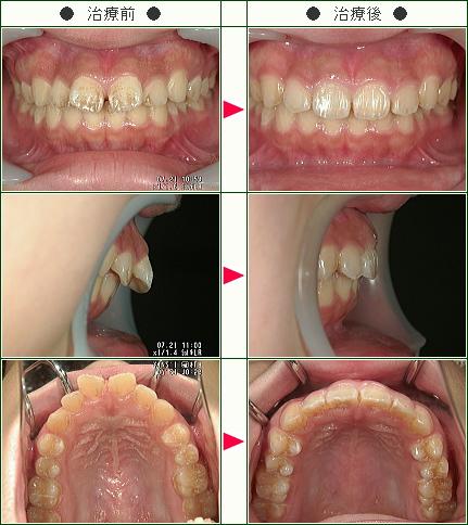 出っ歯矯正症例(Y・K様 16歳 女性)
