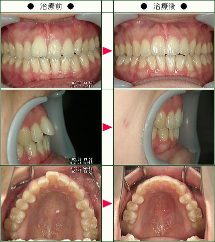 出っ歯矯正症例(Y.K様 26歳 女性)