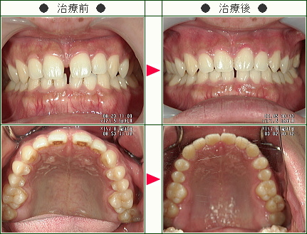 前歯のすきっ歯矯正症例(Y.K様 28歳 男性)