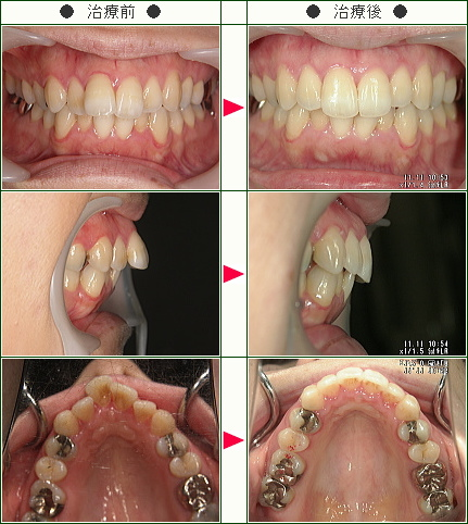 出っ歯矯正症例(Y・K様 31歳 女性)