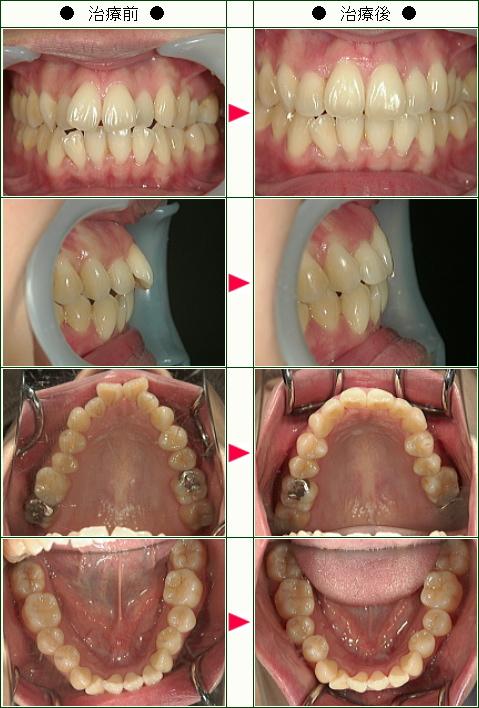 歯のデコボコ矯正症例(Y.K様 34歳 女性)