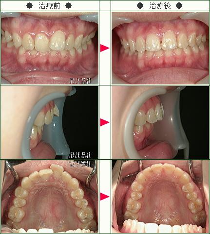 歯のデコボコ症例(Y.M様 18歳 女性)