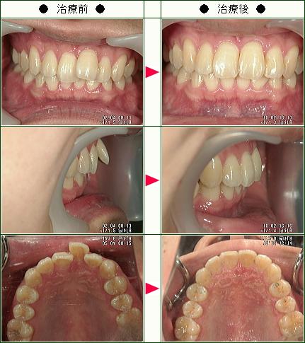 歯のデコボコ矯正症例(Y・M様 24歳 男性)