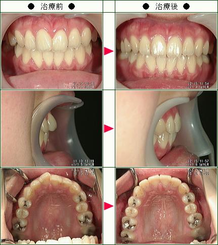 歯のデコボコ矯正症例(Y.N様 25歳 女性)