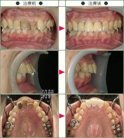 出っ歯矯正症例(Y・N様 47歳 女性)