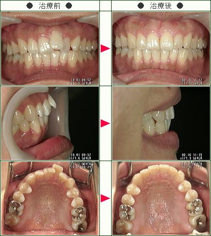 歯のデコボコ矯正症例(Y・O様 29歳 女性)