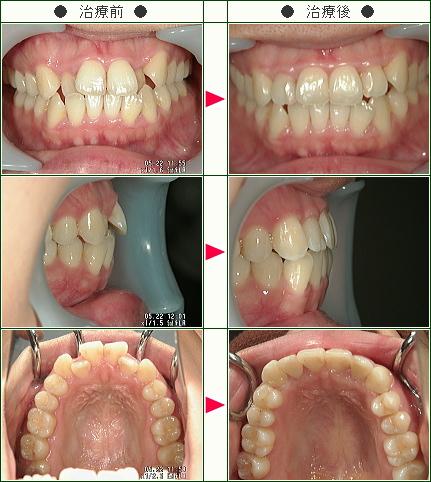 歯のデコボコ矯正症例(吉田様 28歳 女性)