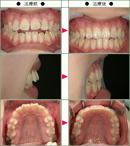 出っ歯矯正症例(ようこ様 24歳 女性)