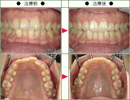 歯のデコボコ矯正症例(Y・S様 34歳 女性)