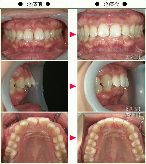 前歯のすきっ歯矯正症例(Y.S様 35歳 女性)