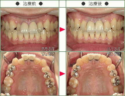 歯のデコボコ矯正症例(Y・S様 36歳 女性)