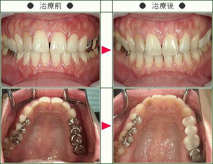 前歯のすきっ歯矯正症例(Y.S歳 39歳 女性)