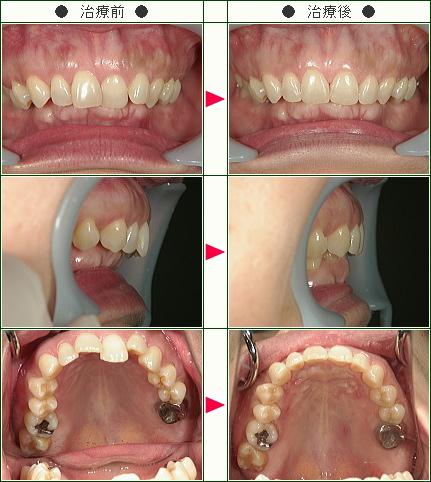 歯のデコボコ症例(Y.S様 54歳 女性)