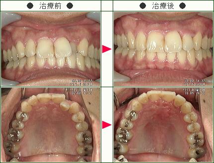歯のデコボコ矯正症例(Y.T様 30歳 男性)