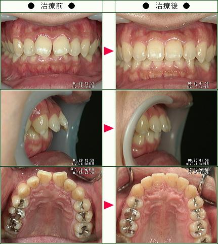 歯のデコボコ矯正症例(Y.U様 39歳 男性)