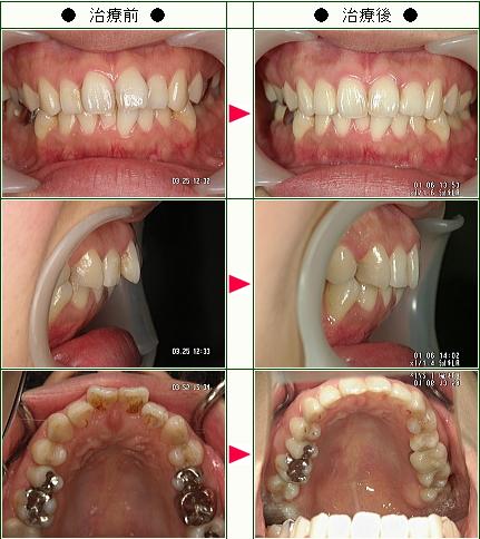 出っ歯矯正症例(幸恵様 26歳 女性)