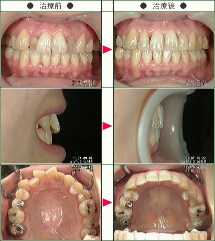 歯のデコボコ矯正症例(ユウタン様 35歳 女性)