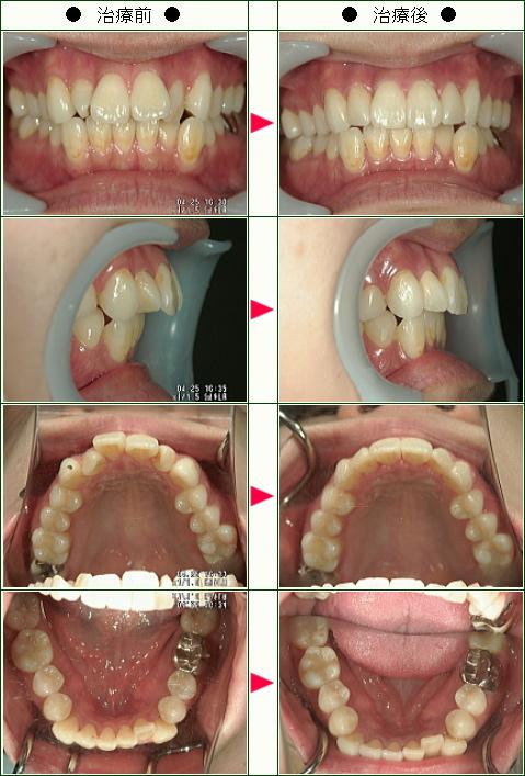 歯のデコボコ矯正症例(Y・Y様 31歳 女性)