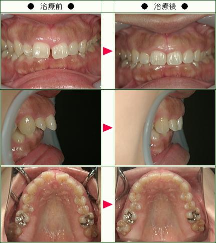 前歯のすきっ歯矯正症例(Y.Y様 34歳 女性)